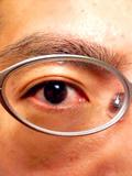 Eye_060318_193701