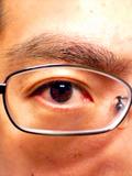 Eye_060318_193802