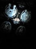 MRI_050715_132301
